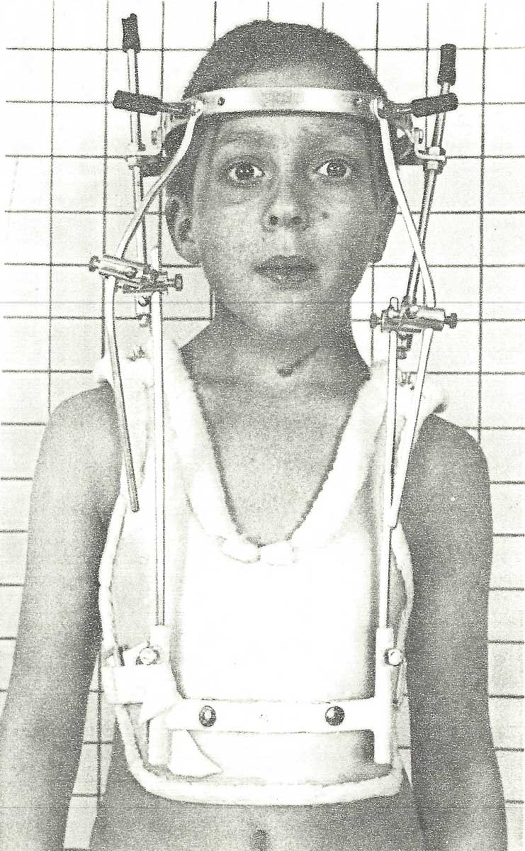 A small boy with a metal frame attached to his head